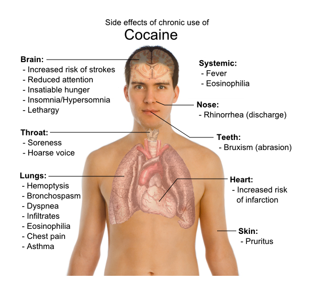 the effects of cocaine on the human body The effects of drug abuse and addiction can harm the body affecting almost every organ in the human body cocaine, marijuana, and others - effect the brain's.